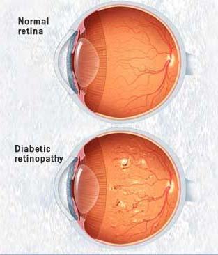 اثرات جبران ناپذر دیابت بر چشم