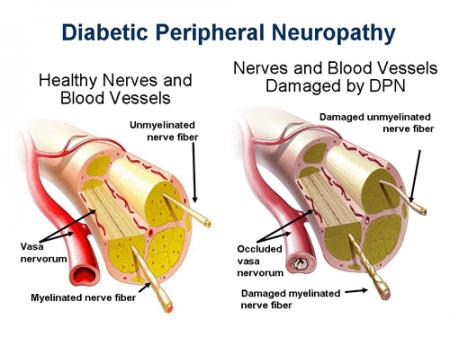 در مورد نوروپاتی خودمختار دیابتی چه می دانید؟